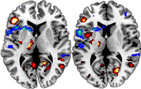 Brain activity imaged by an fMRI while participants with stroke viewed others performing an action. Blue areas show decreased activity (likely where there are lesions caused by a stroke) while red areas show increased activity (thought to be regions of the brain working harder to make up for the damaged regions). Image courtesy of Kathleen Garrison.