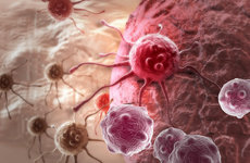 Cancer cells proliferate at a more accelerated speed than healthy ones. Image courtesy of Shutterstock.