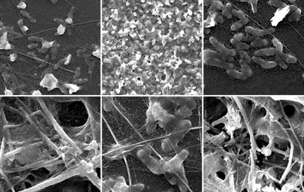 Still images and videos of arsenic sulfide nanofibers growing under a microscope help Ian McFarlane and Julia Lazzari-Dean to better understand the microbes' properties and potential applications. These materials could hold the key to creating new nanomaterials that do jobs not yet imagined.