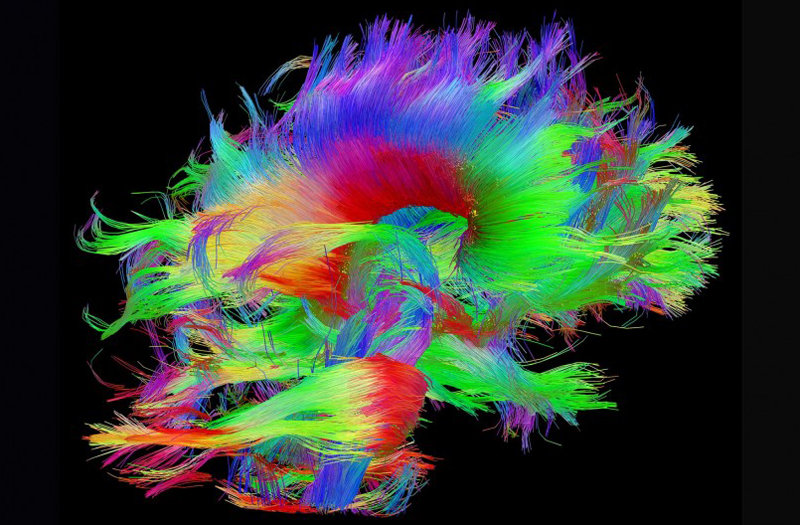 Cognition And Behavior White Matter >> What Are The Origins Of Alzheimer S Disease And How Can We Stop It