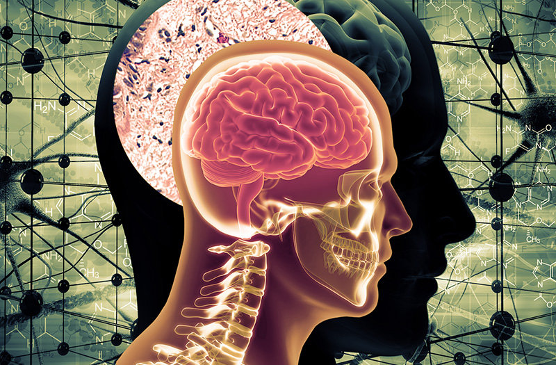 USC Dornsife scientists have found a link between diabetes and increased risk of Alzheimer's disease, noting that treatment for diabetes can help bring risk back down. (Composite: Dennis Lan. Image source: iStock.)